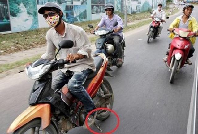 Quen da chong nghieng gac chan sau nguy hiem khon luong - 3